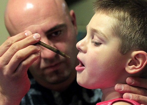 Medical marijuana extract for epilepsy in children